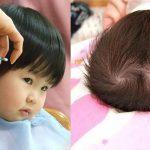 Đếm xoáy tóc- Giải bài toàn tương lai
