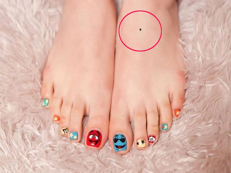 Nốt ruồi ở mu bàn chân